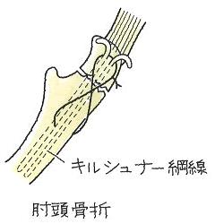image65