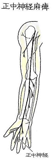 image93