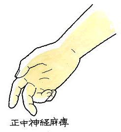 image94