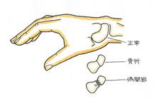 手根骨の骨折 舟状骨々折(しゅうじょうこつこっせつ)